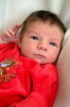 "Jaundiced baby ""Treatment for Jaundice"" from Breastfeeding Support"