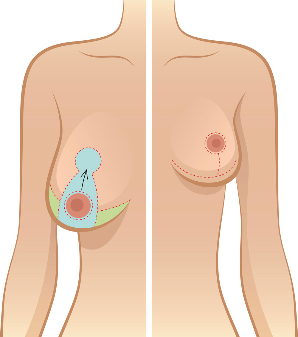 Anchor type scar pattern for breast reduction surgery